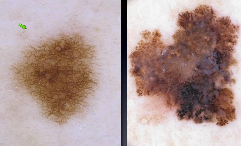 Дерматоскопическая картина родинки (слева) и меланомы (справа)