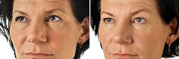 Сколько держится ботокс на волосах, методика процедуры
