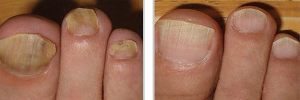 Средства лечения грибка на ногтях ног